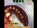 13颗磁力珠男童胃内连成串胃壁穿孔 医生手术取出